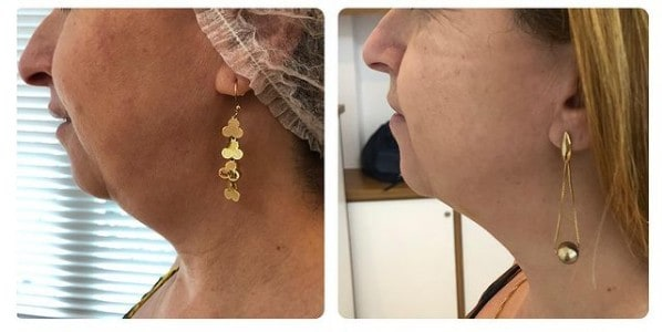 antes e depois de carboxiterapia em flacidez na papada