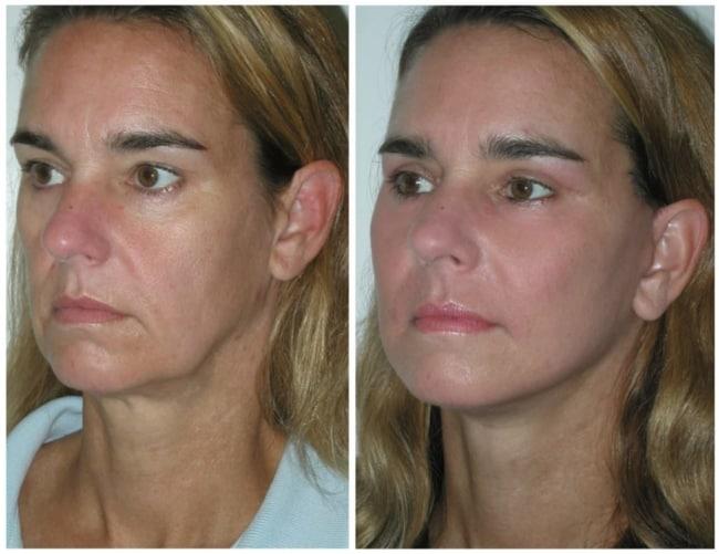 foto de antes e depois de carboxiterapia facial