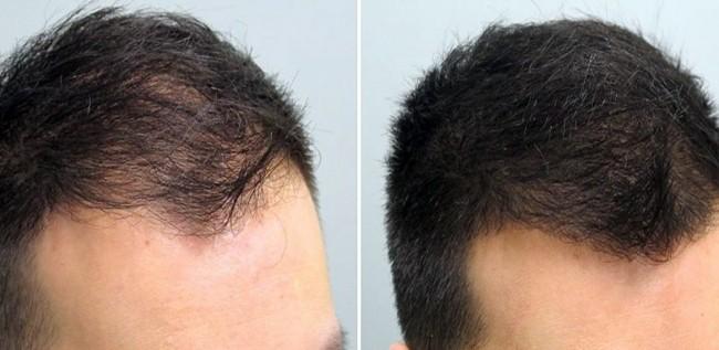 antes e depois de carboxiterapia capilar masculina
