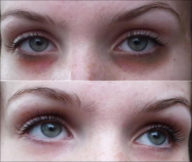 foto de carboxiterapia para olheira