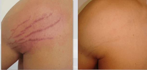 resultado de carboxiterapia em estrias vermelhas