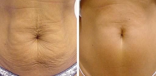 resultado de carboxiterapia em flacidez na barriga