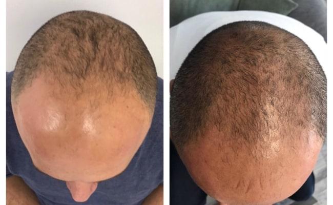 antes e depois de carboxiterapia para calvicie