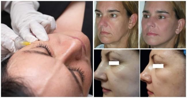 carboxiterapia no rosto
