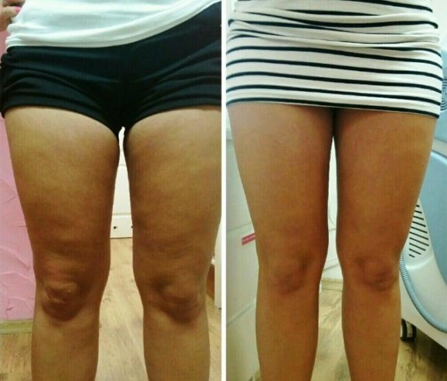 carboxiterapia para gordura nas pernas antes e depois