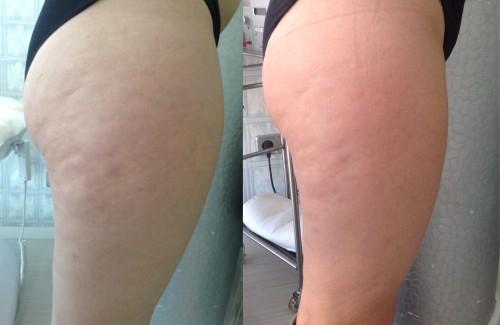 foto de antes e depois de carboxiterapia em celulite na perna
