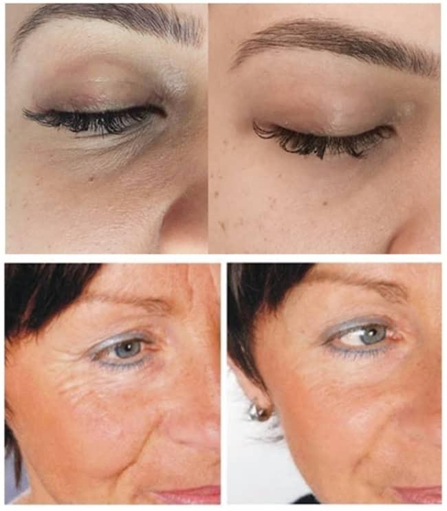 fotos de antes e depois de carboxiterapia facial