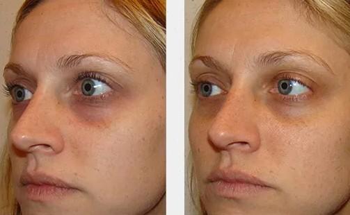 resultado de carboxiterapia no rosto para olheiras