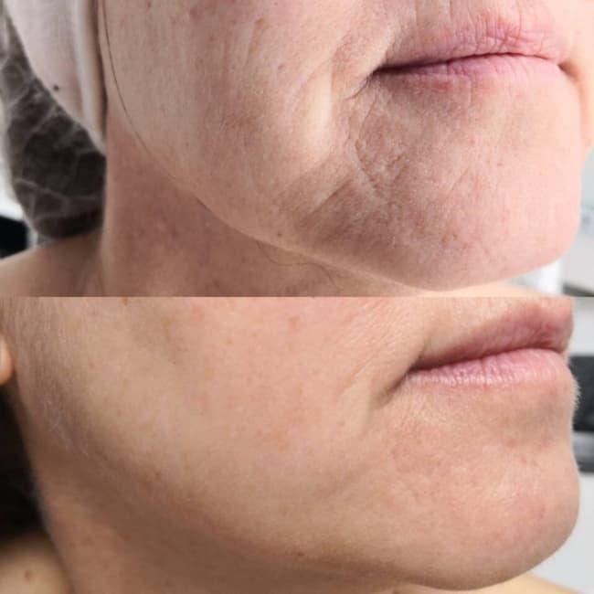 antes e depois de carboxiterapia na regiao da boca