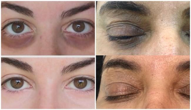fotos de antes e depois de carboxiterapia facial para olheiras