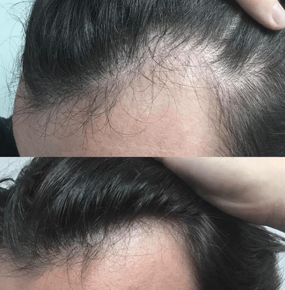 resultado de tratamento carboxiterapia capilar