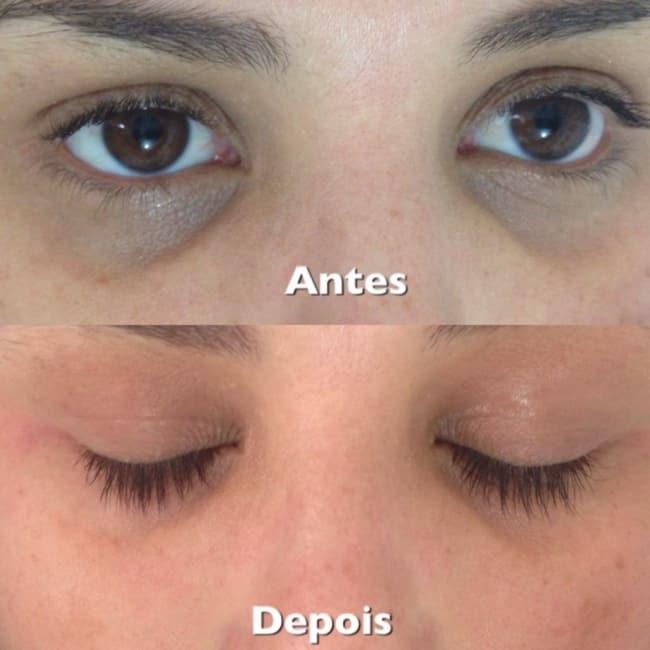 antes e depois de tratamento de olheiras