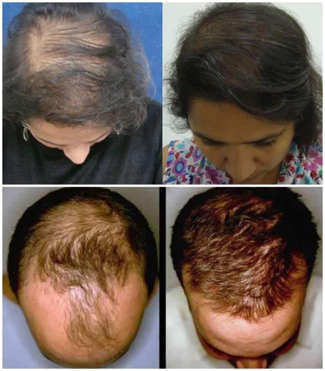 fotos antes e depois de carboxiterapia no couro cabeludo