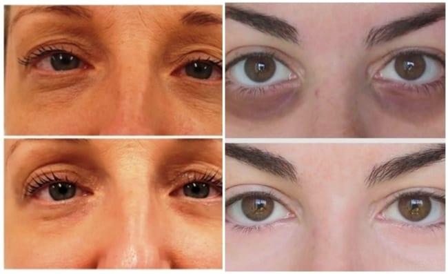 fotos de carboxiterapia no rosto